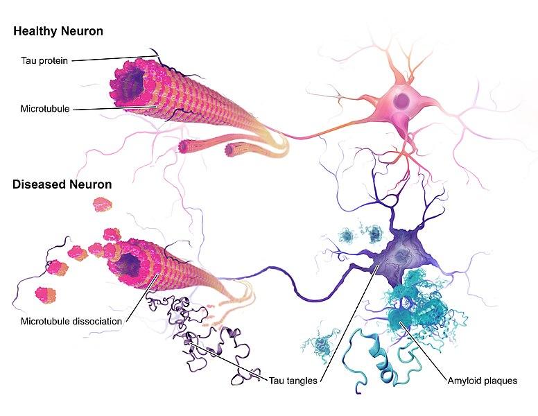Alzheimers_Disease_ neurons_Alzheimer vaccinations